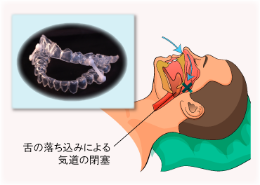 睡眠時無呼吸の原因