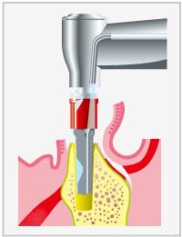 人工歯根埋入術