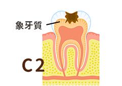 初期むし歯C2